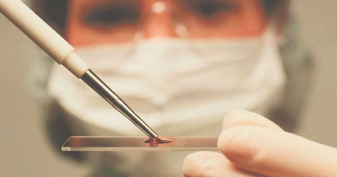 Фото:Норма кальцитонина в крови у женщин